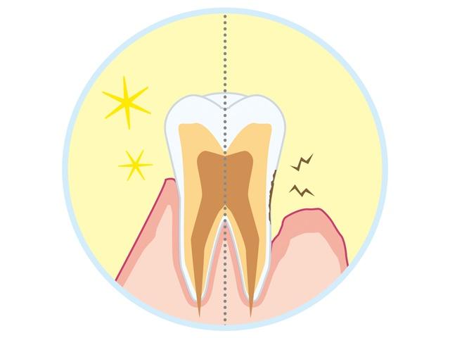 歯周病の予防法。「自分の歯を守るためにやるべきこと」とは?